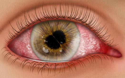 maladies de l'œil