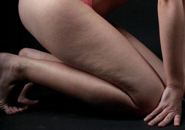 cellulites