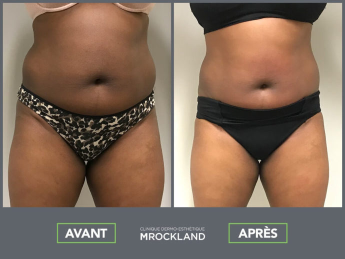 Vanquish Me alternative liposuccion Mrockland